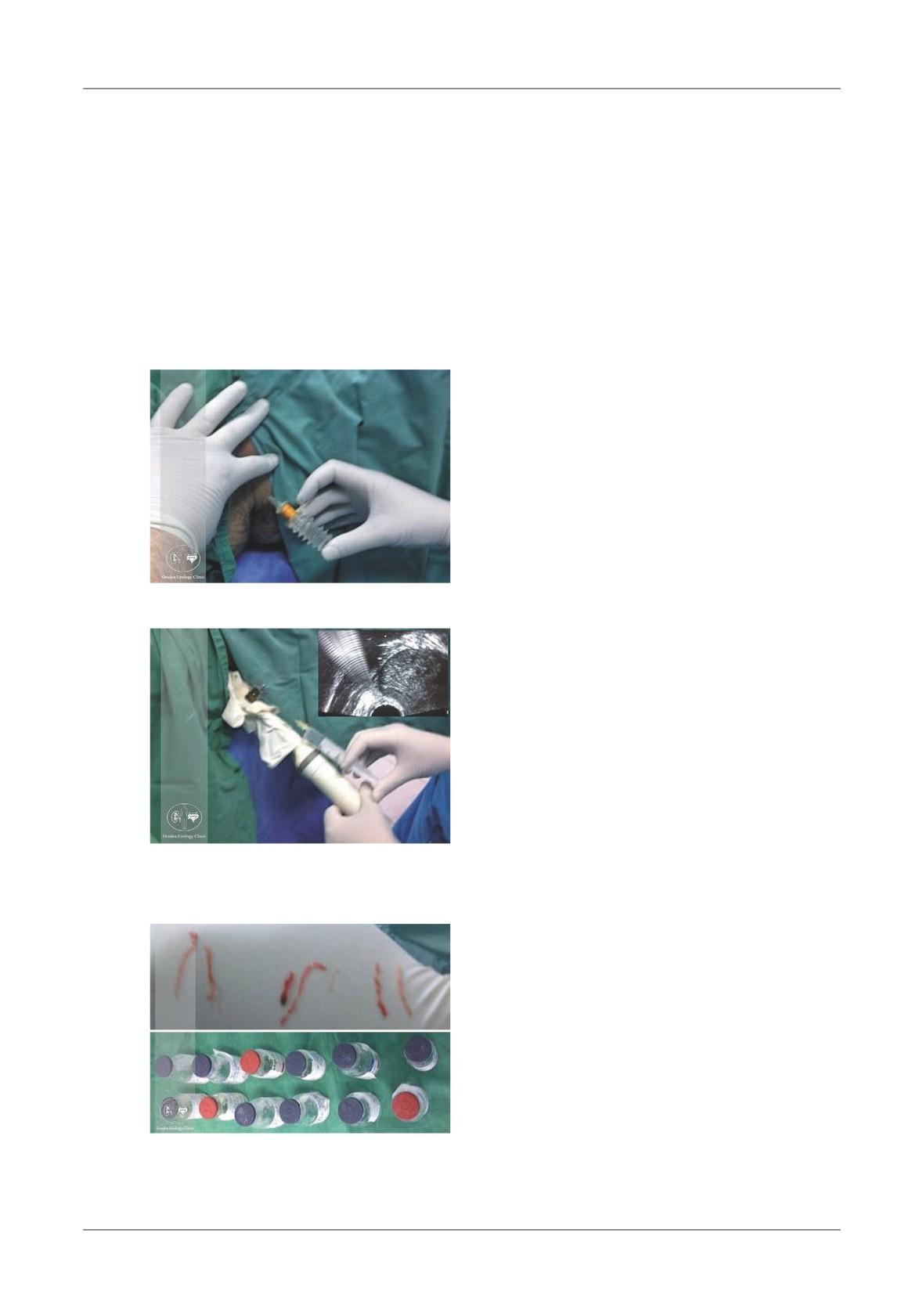 Prepararea articulațiilor Elbon